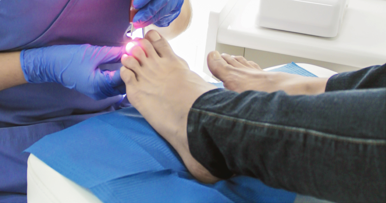 tratamiento-laser-de-hongos-en-las-unas