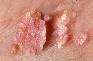 detalle de verruga genital