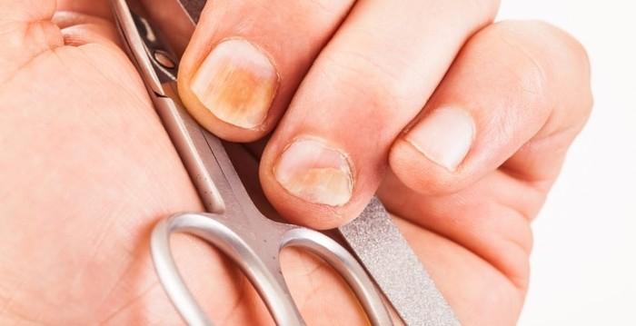 aparición de hongos en las uñas