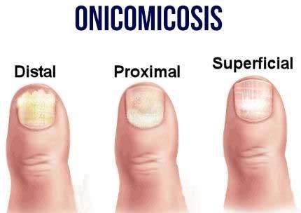 clasificacion-de-la-onicomicosis