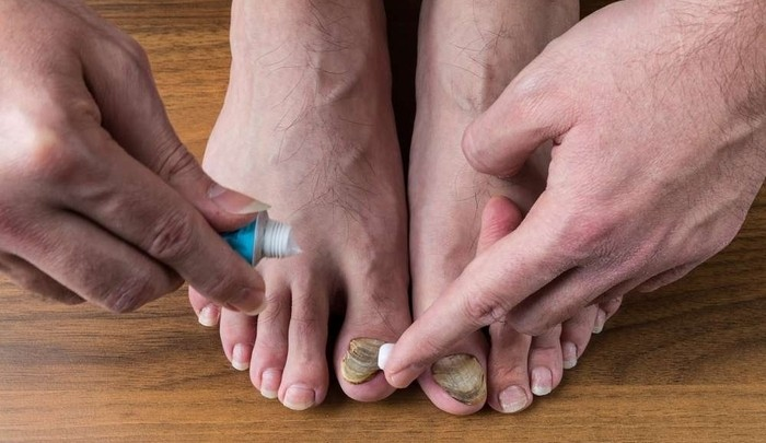 tratamiento convencional para hongos de uñas